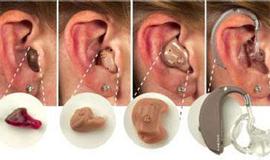 怎样选配助听器