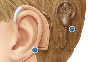 人工耳蜗引领听觉研究前沿