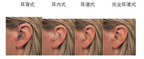 想给老人配助听器,是耳背式的好还是耳内式的好?