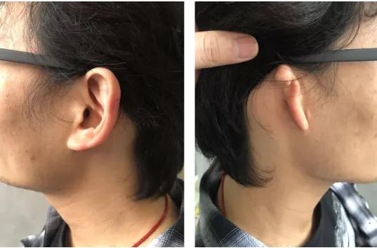牙骨传导技术干预单侧传导性听力损失(小耳畸形)